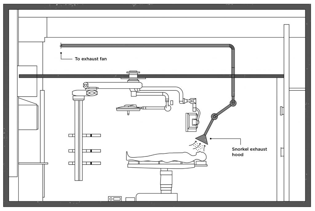 operating room (OR) snorkel sketch